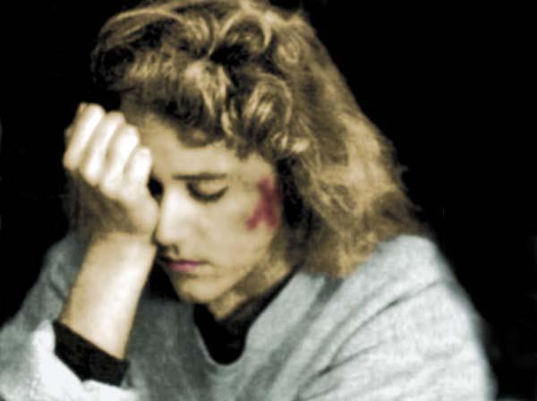 bruise photo copyright 1990-2017 Janet Kuypers
